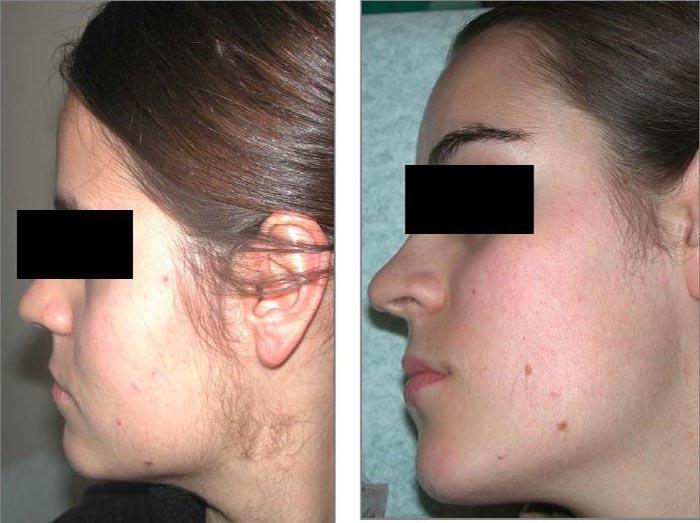 Удаление волос навсегда с лица