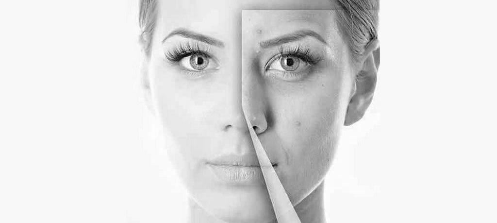 лечение проблемной кожи - постакне